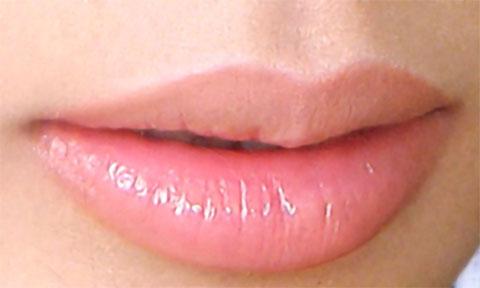 Tẩy môi thâm