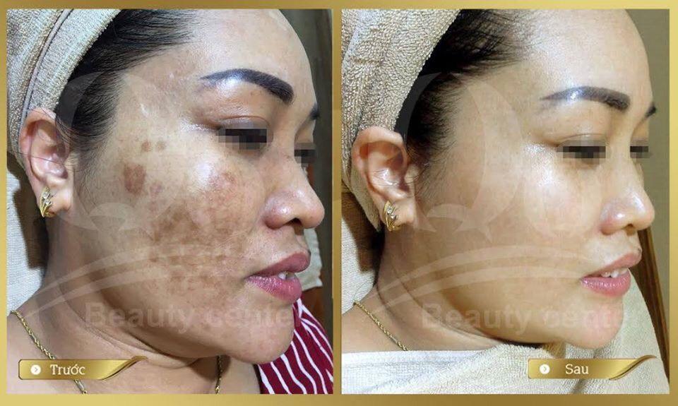 Làm đẹp và chăm sóc da cho chị em mùa dịch Covid-19