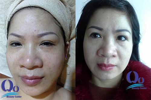 Hình ảnh trước và sau khi làm trắng da