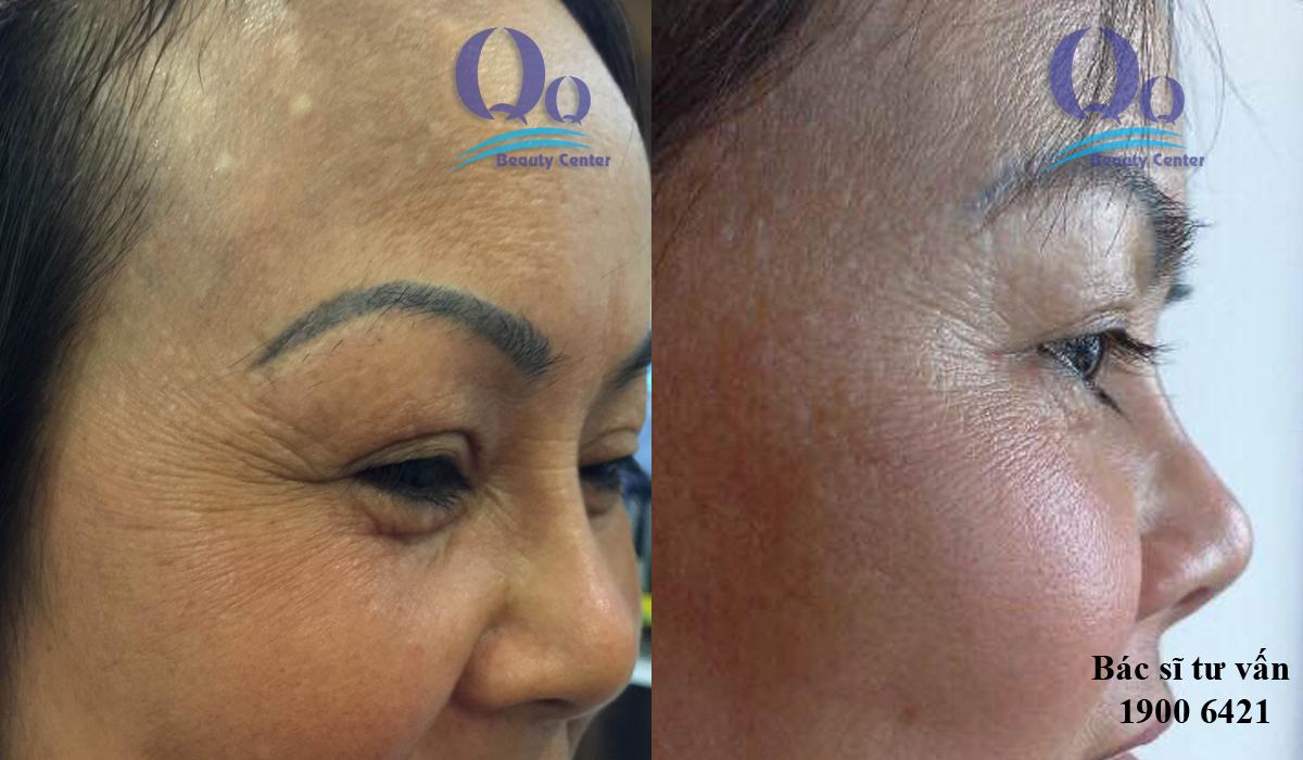 Hình ảnh trước và sau khi xóa nếp nhăn ở mặt 3