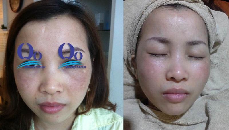 Hình ảnh trước và sau khi điều trị nấm da