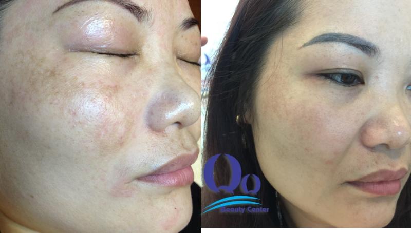 Hình ảnh trị nấm da mặt