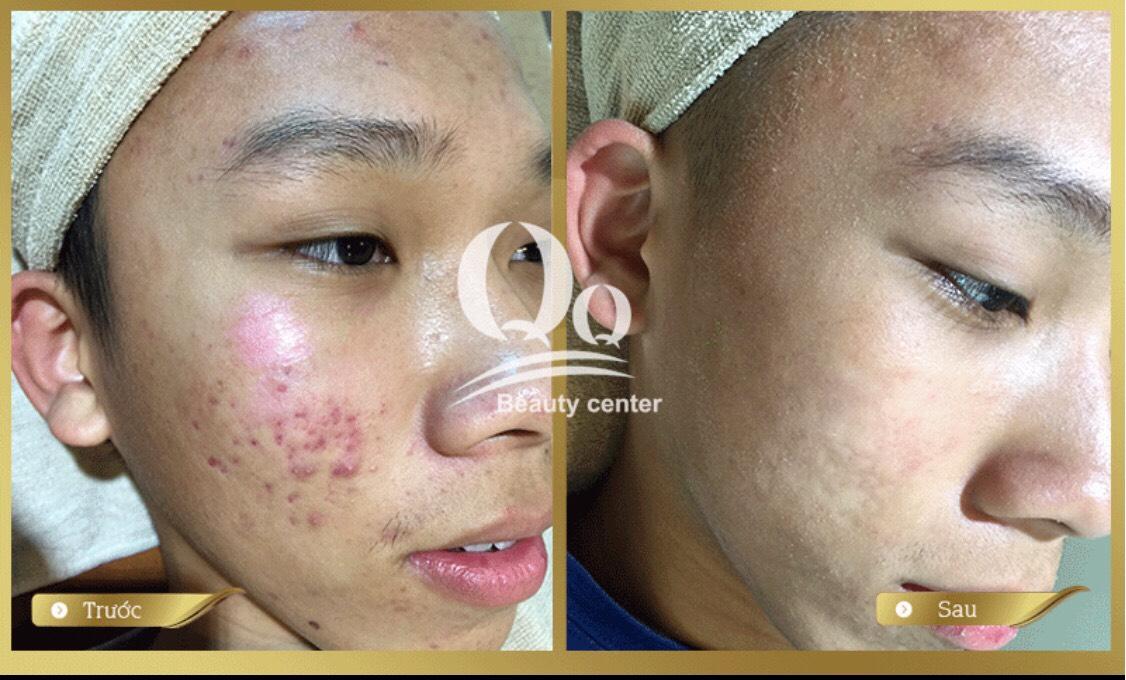 Kết quả sau khi điều trị Mụn và Sẹo tại Thẩm Mỹ Viện Thanh Quỳnh