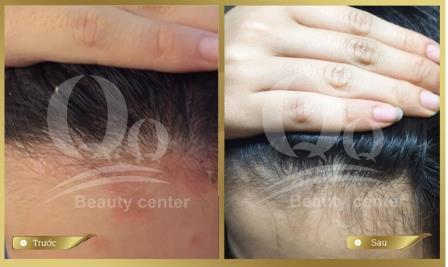Chữa bệnh vẩy nến da đầu